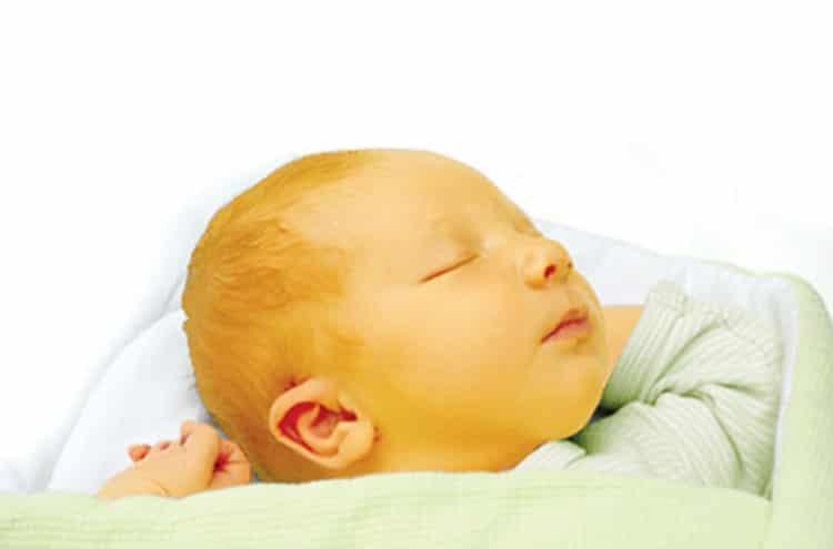 علاج الصفار عند الاطفال حديثى الولادة بالثوم والاعشاب والنسب الطبيعية هام جدا مجلة أبدعي