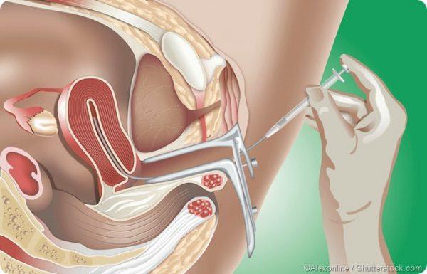 متى يظهر هرمون الحمل في البول بعد ترجيع الاجنة 2